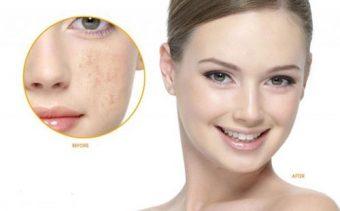 Đẹp và tự tin với phương pháp chăm sóc da từ bột cám gạo nghệ