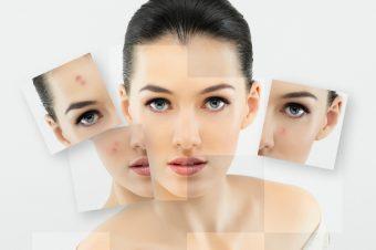 Điều hỗ trợ hỗ trợ điều trị chứng khô và nứt nẻ trên da với những biện pháp tự nhiên