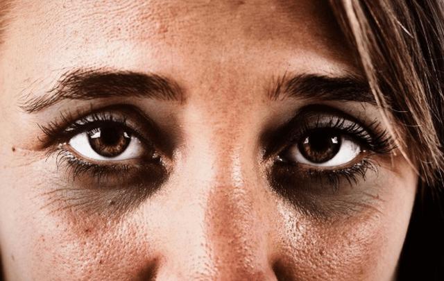 Nguyên nhân mắt bị thâm quầng