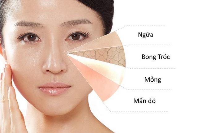 Dưỡng ẩm là cách làm da mặt mịn màng dễ thực hiện nhất
