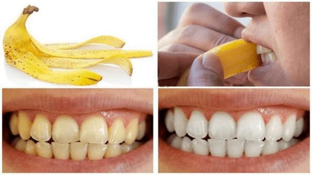 Cách bảo vệ sức khỏe răng miệng