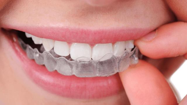 Cách làm trắng răng tại nhà với than hoạt tính thực hiện ra sao?