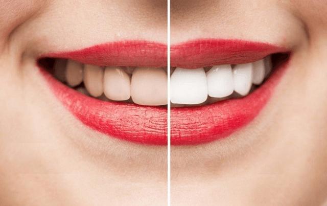 Cách làm trắng răng bằng vỏ chuối