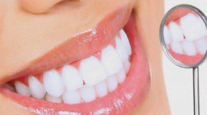 Để mang lại nụ cười đẹp cần biết cách để vệ sinh phương pháp làm trắng răng này