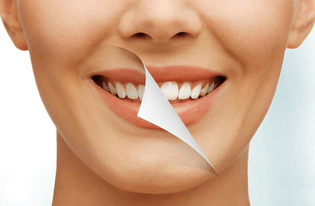 Cách làm trắng răng bằng dầu dừa