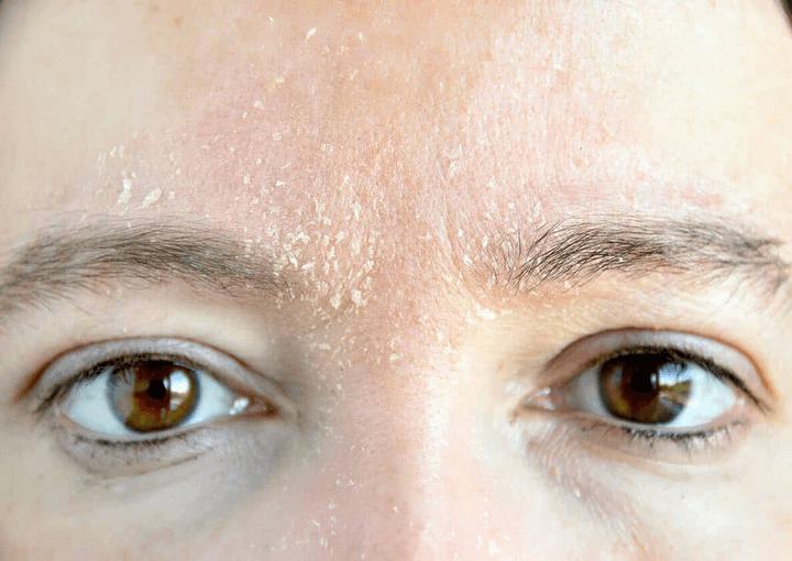 Xử lý tác hại của ánh nắng mặt trời